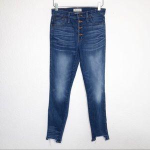 Madewell | Button Fly Step Hem Skinny Jeans Sz 27